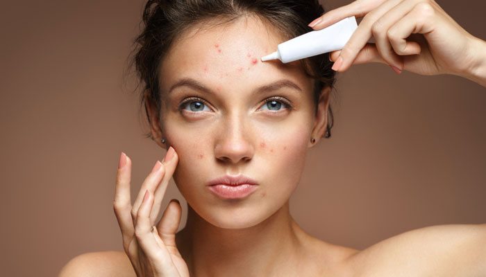 4 Top Acne Skin Care Treatments