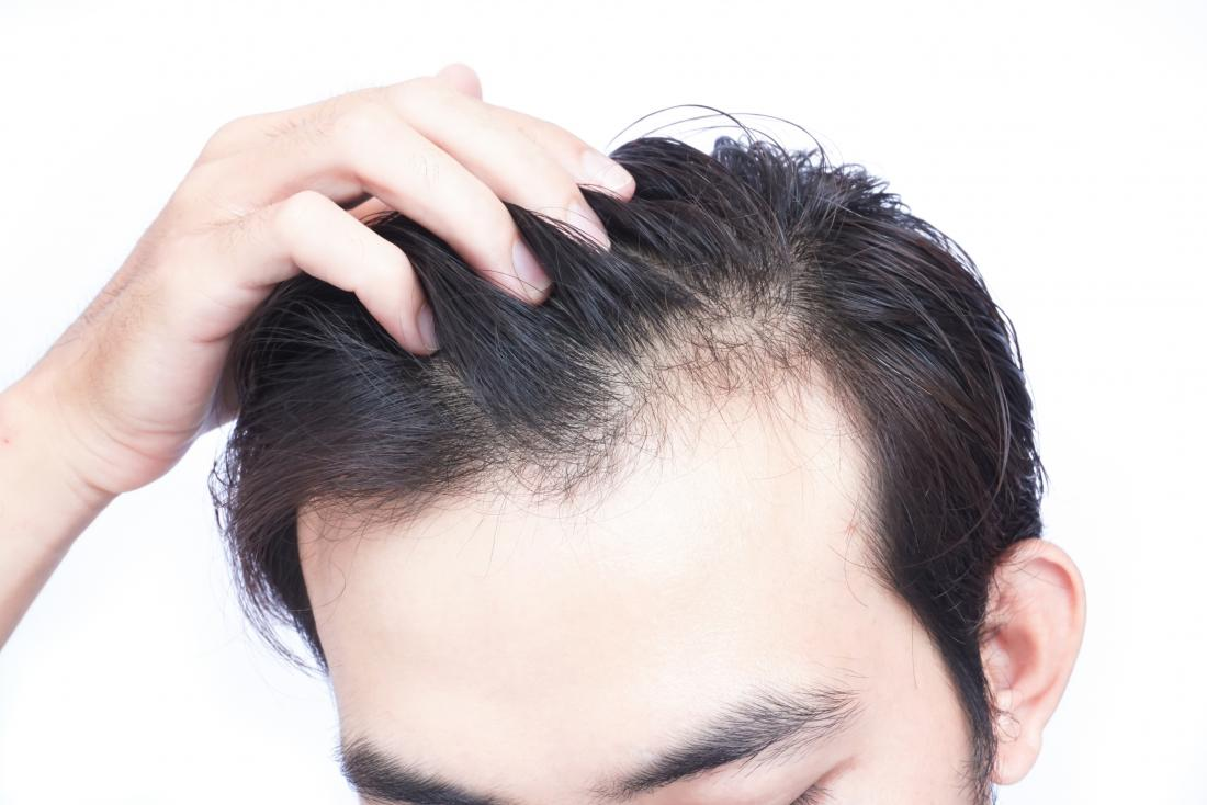Stress A Big Cause Of Hair Loss: How To Fight Against It?