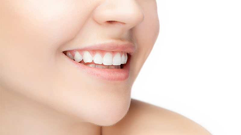 Singapore Teeth whitening that you can trust